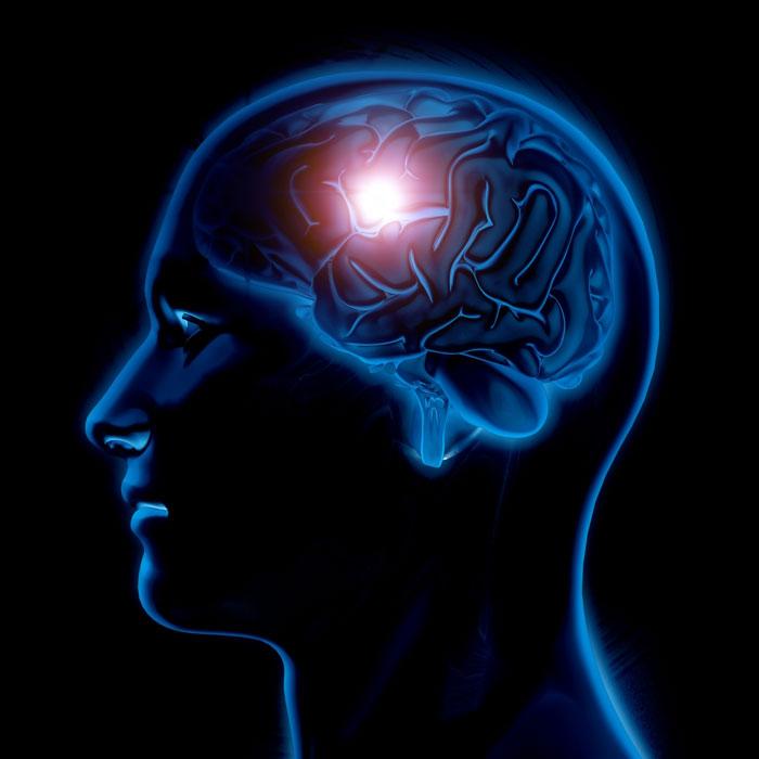 brain-health-pic